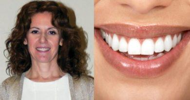 Ελληνίδα εφηύρε ουσία που αναγεννά τα δόντια